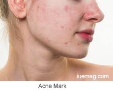 Acne scar, Acne mark