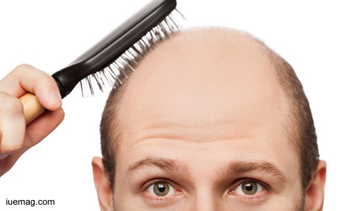 All About Alopecia